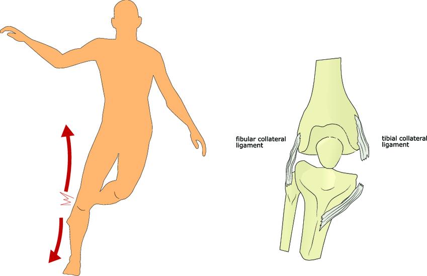 Изображение - Лфк при разрыве связок коленного сустава ExternalLink_shutterstock_249738436