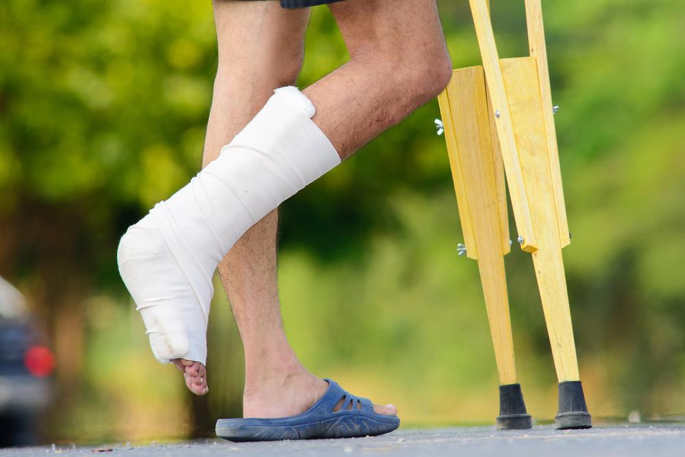 Срок реабилитации перелом голеностопного сустава как разработать сустав после перелома запястья