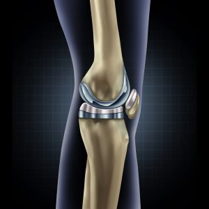 Процесс замены коленного сустава видео хаш полезен для суставов