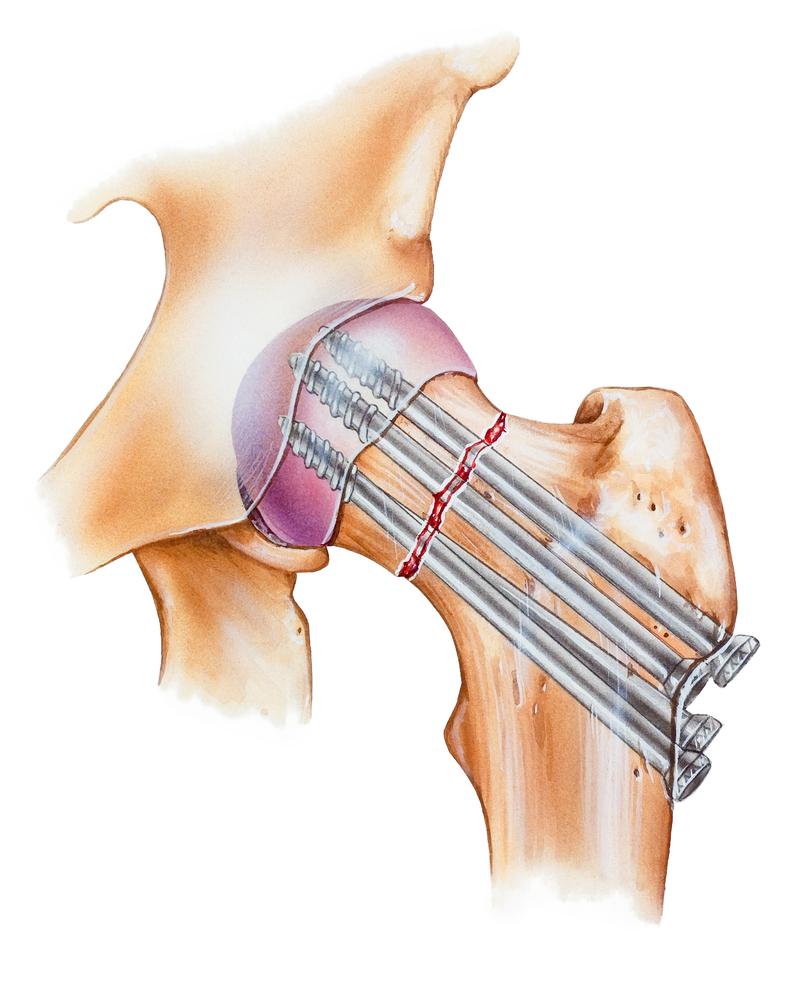 Симптомы и лечение перелома шейки бедра реабилитация после операции