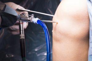 Изображение - Артроскопия коленного сустава реабилитация ExternalLink_shutterstock_545133805-300x200
