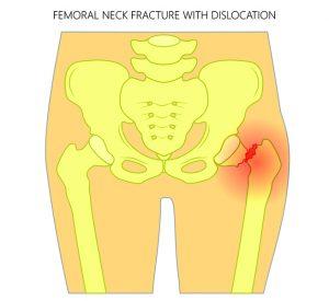 Физиотерапия при переломе шейки бедра